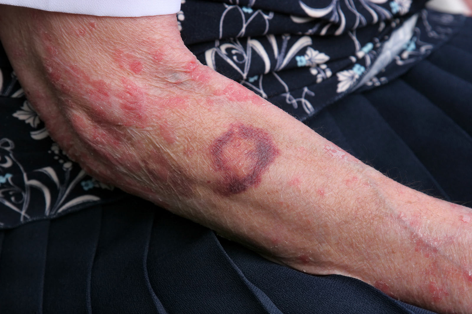 Elderly Physical Abuse Signs | Charleston WV Nursing Home Attorney